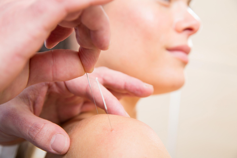 Effektive Stiche – Akupunktur in Sport und Fitness