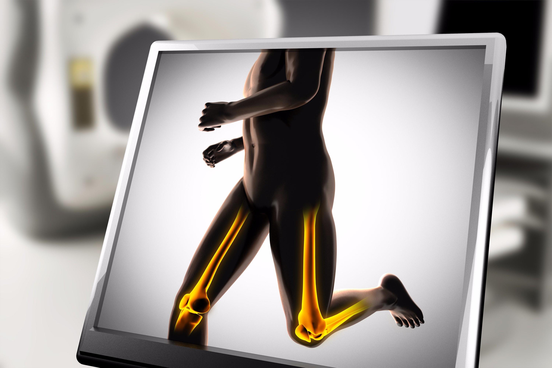 High-Impact-Training schützt vor Osteoporose