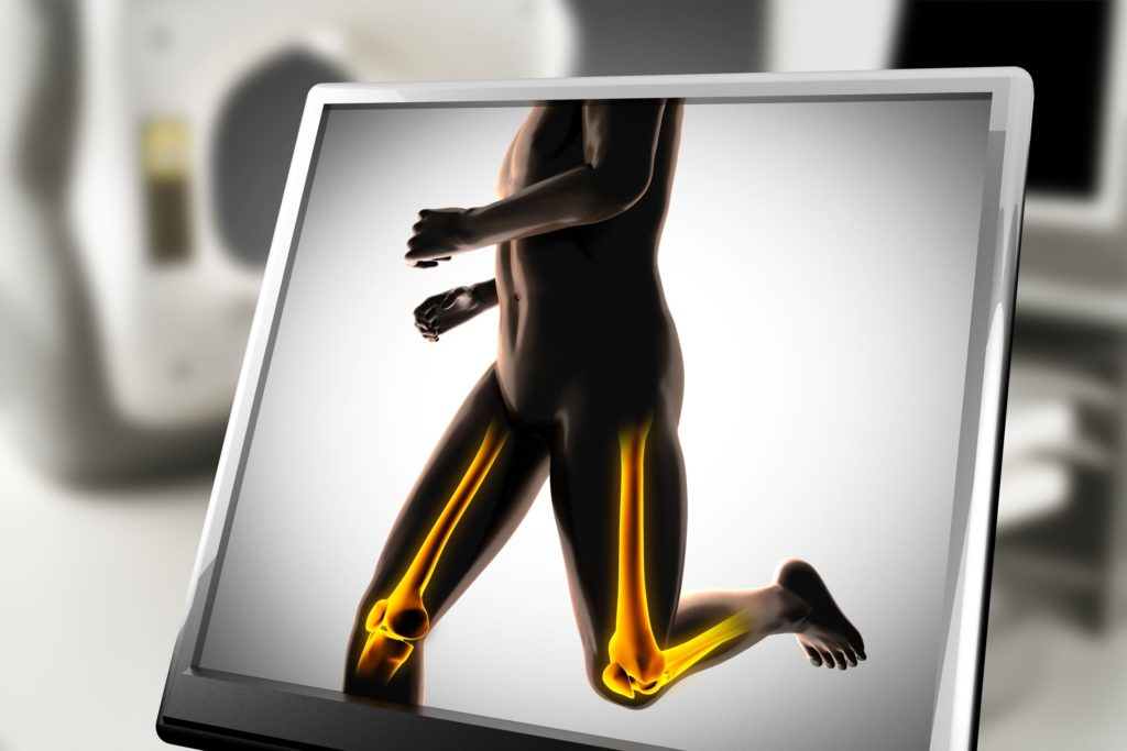 Bei Läufern ist das Osteoporoserisiko erhöht