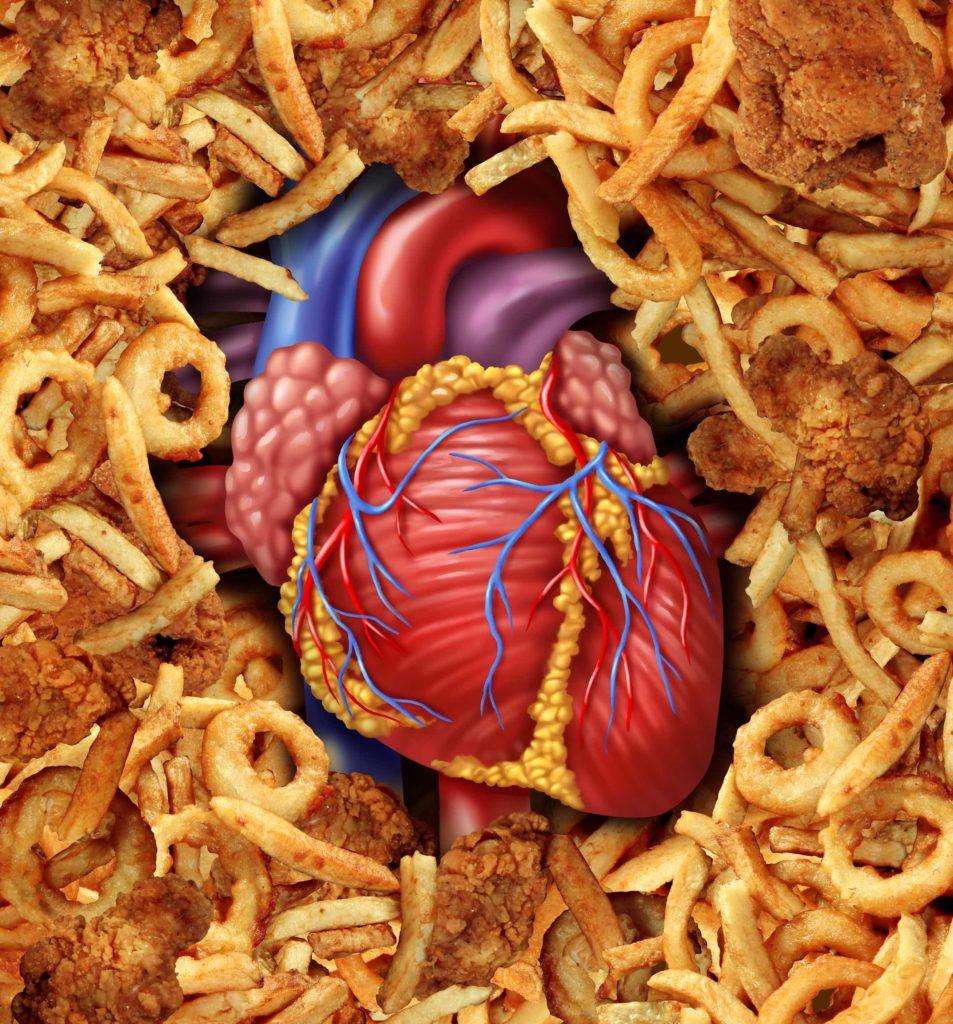 Gesättigte Fettsäuren sind nicht gesund, aber auch nicht so gefährlich wie angenommen