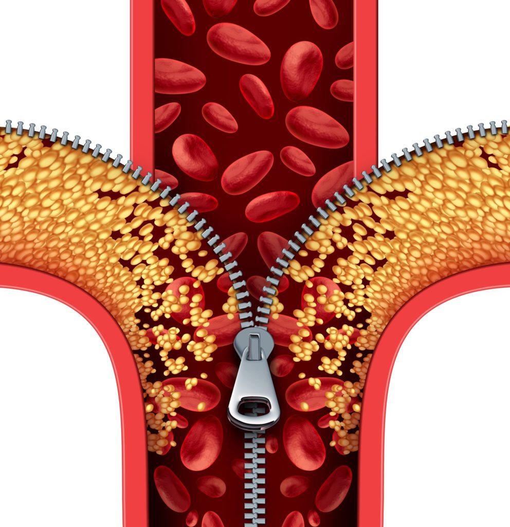 Bei zu viel LDL-Cholesterin drohen gesundheitliche Probleme